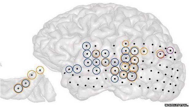 Barevné kroužky ukazují místa, kde intenzita různých rytmů aktivity mozku koreluje s intenzitou tinnitu zkoumaného pacienta.
